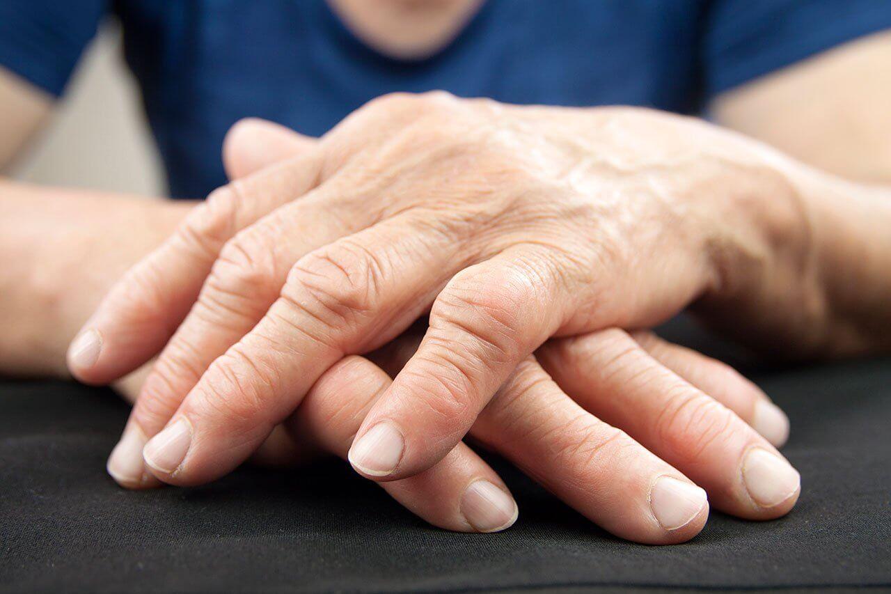Tratamiento para Artritis Reumatoidea